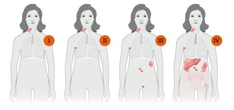 estadiamentos_linfoma_de_hodgkin