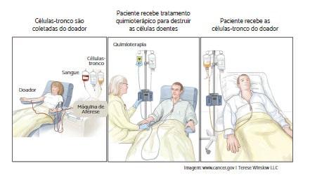 Transplante_de_medula_ossea_alogenico_LMMC