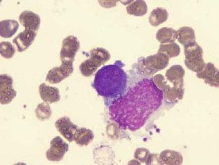 Imagem_microscópica_da_mielofibrose_aguda