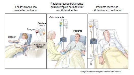 transplante_de_medula_ossea_para_mielofibrose